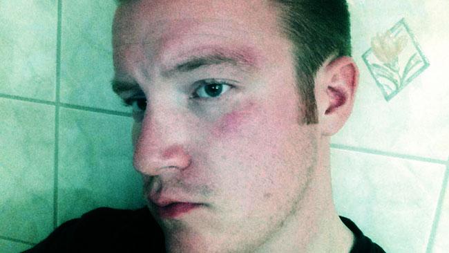 Knytnävsslaget träffade både ögonbrynet och strax under ögat. Foto: Privat