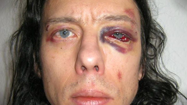 Dan Park blev misshandlad i Danmark. Foto: Facebook / Privat