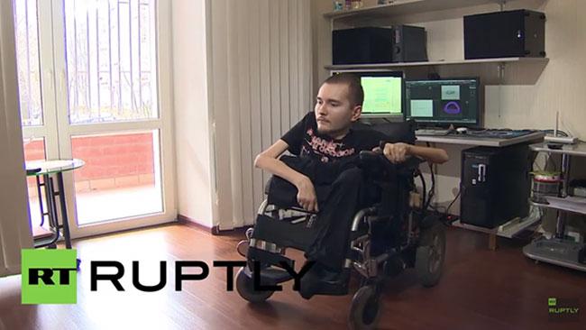 Valery kan bli den första människan att genomgå en huvudtransplantation. Foto: RT Ruplty