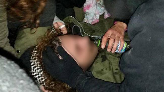 Här ligger den skadade vänsteraktivisten. Foto: Romska Rättigheter / Facebook