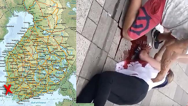 Ett av offren för attacken. Foto: Youtube