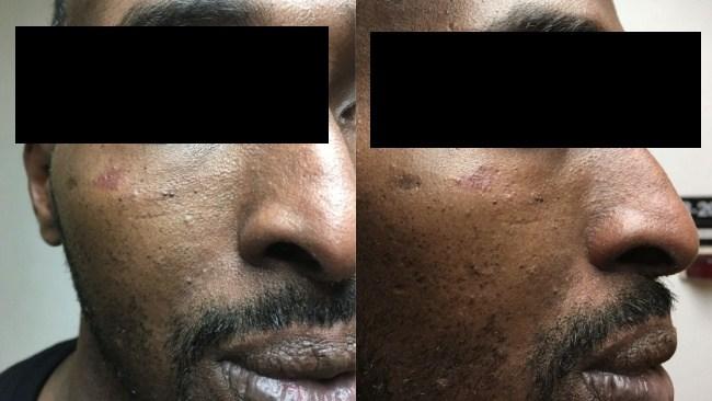 Somalier våldtog kvinna med träsvärd – slipper utvisning