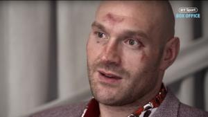 Tyson Fury donerar 93 miljoner till hemlösa efter fajten