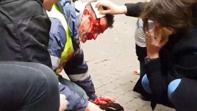 Fransk demonstrant i koma – sköts i huvudet av polis