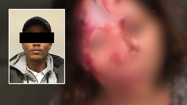 Två rånade och slog ensam kvinna blodig – skrattade och var glada efteråt