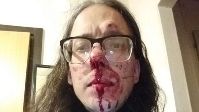 Gatukonstnären Dan Park misshandlad