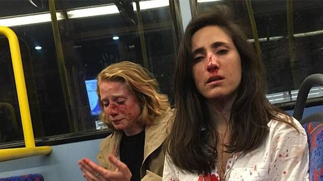 Lesbiskt par ville inte kyssas – misshandlades av gäng